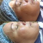 Омоложение, лифтинг, упругость кожи лица, Челябинск